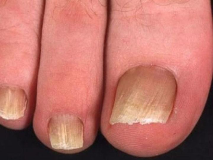 Сок лука от грибка ногтей